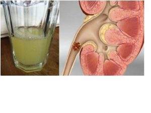 Lemon Juice for Kidney Stone